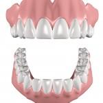 Zirkoniumdioxid in der Zahnmedizin