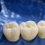 Zahnimplantate – Antworten zu häufigen Fragen